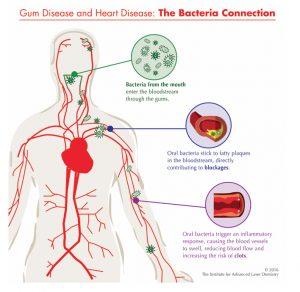 periodontitis heart disease