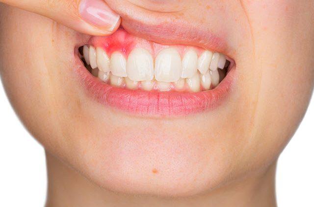 How to stop bleeding gums